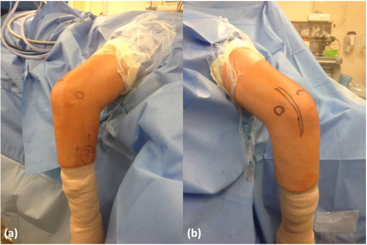 Loose Bodies Of The Elbow Joint